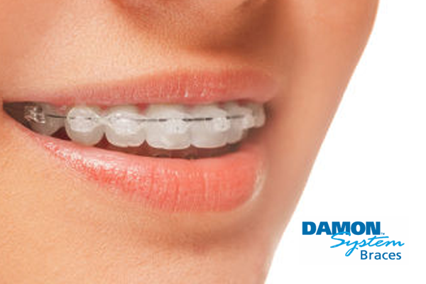 Damon-Braces-Image-Quay-Dental
